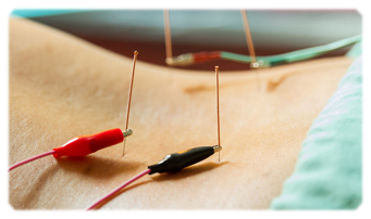 laser-electro-acupuncture_1